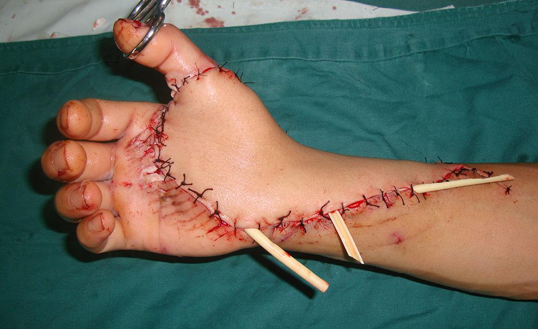 股前外侧游离皮瓣修复手部缺损